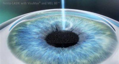 Điều trị cận thị bằng phuong phap Femto Lasik