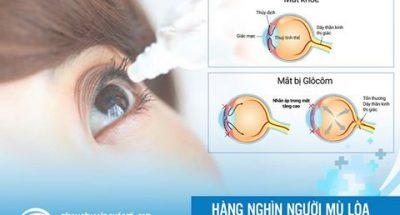 Corticoid trong thuốc chữa bệnh mắt có thể gây mù lòa