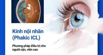 phakic-icl-phuong-phap-dieu-tri-cho-nguoi-can-vien-cao